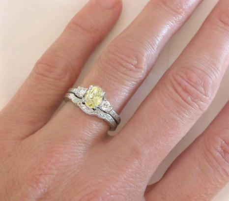 Yellow Shire Diamond Engagement Ring With Matching Band